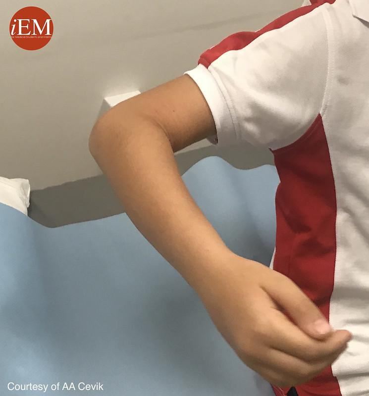 Torus Fracture - right arm 2