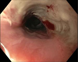 Zihinsel engelli 5 yaşında hasta, düğme pil alımından (6 saatte) kaynaklanan özofagus hasarının endoskopik görünümü
